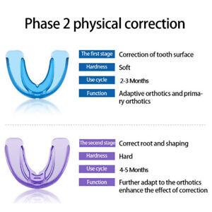 2Pcs×Dental Orthodontic Appliance Tooth Retainer Teeth Corrector Trainer Brac Gw