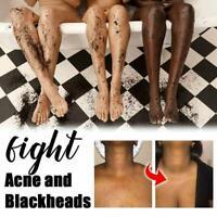 250g Arabica Coffee Dead Sea Salt For Exfoliating Body Scrub Anti Acne Cellulite