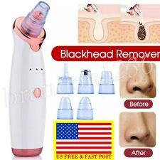 Electric Skin Care Facial Pore Blackhead Remover Cleaner Vacuum Acne Cleanser US