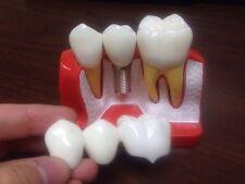 Dental Implant Crown And Bridge Demonstration Model Sells Dentistry