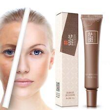 Age Freckle Spot Melasma Remover Whitening Lightening Face Cream Skin Care 30g
