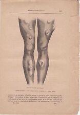 Ancienne gravure médicale 134 - Médecine pratique - Accidents tertiaires