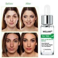 VC Hyaluronsäure Serum Anti-Aging Feuchtigkeitsspendende Hautpflege Whitening