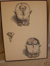 vintage ANATOMICAL MEDICAL PRINT human BRAIN SURGERY
