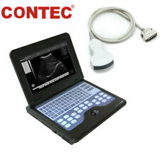 CE Portable Ultrasound Scanner Laptop Machine 3.5 Convex probe,Optional linear