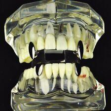Vampire Fang Set Top Fangs & Two Bottom Caps Plain Black Plated Dracula Teeth