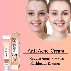 Anti Acne Cream Acne Clear Spots Pimple Cream Face Skin Care Clear Skin Ointment