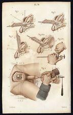 Cabinet de curiosité planche affiche A3 anatomie humaine chirurgie n°6 homme