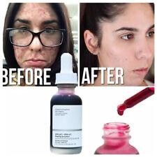 The Ordinary AHA 30% + BHA 2% Peeling Solution 10-Minute Exfoliating Facial 30ml