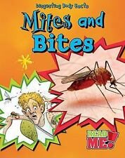 Mites and Bites (Disgusting Body Facts)-ExLibrary