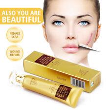 Lanbena TCM Scar Removal Acne Mark Acne Scar Cream Gel Skin Repair Treatment 30g