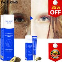FAIR KING Effective Whitening Freckle Cream Acne Spots Melanin Skin Care TSLM2