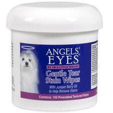 Suave desgaste manchas toallitas 100 conde por Angels' Eyes