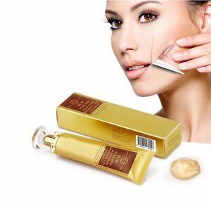 30g TCM SCAR AND ACNE MARK REMOVAL GEL OINTMENT Acne Scar Cream E&
