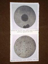 Medicina e biologia nel 1897 Ingrandimenti del microbo della febbre gialla