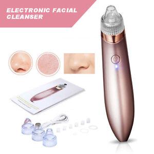 Electric Skin Facial Cleanser Care Vacuum Blackhead Acnes Cleaner Pore Remover