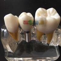 Dental Implant Analysis Crown Bridge Demonstration Teeth Model Clear