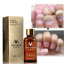 Nail Foot Whitening Toe Fungus Removal Feet Care Essential Oil Treatment Essence