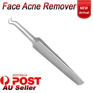 Face Acne Blackhead Remover Needle Clip Tweezers Pimple Popper Extractor Tools