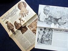 POLYDACTYLISM~TWO OLD MAGAZINE CLIPPINGS~1930/1945~ PHOTO'S + EDITORIAL