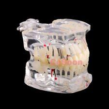 Transparent Dental Implant Disease Tooth Model Dentist Standard Pathology Study