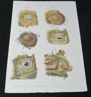 c1870 Human Eye Lithograph Ludovic Hirschfeld - J Ottman Lith Co Ophthalmology 2