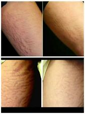 Stretch mark remover scar remover and blemish free cream amazing results works