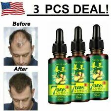 3PCS Ginger Germinal Essential oil Hair Growth Hair Loss Treatment Hair Care USA