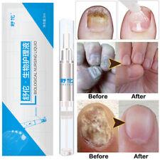 Anti Nagelpilz Stift gegen Nagelpilz Behandlung Pflege 3ml
