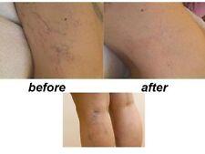 Vene varicose SPIDER Thread Trattamento rimozione troxevasin (troxerutina) GEL 2%.