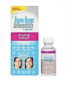 Bye Bye Blemish for Acne Drying Lotion, 1 Oz