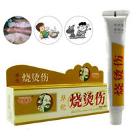 Anti-Infection Cream Antibacterial Burn Wound Care Ointment Burns Scar Remove AB