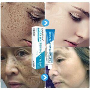 Whitening Freckle Cream Remove Melasma Remove Dark Spots Melanin Brightening