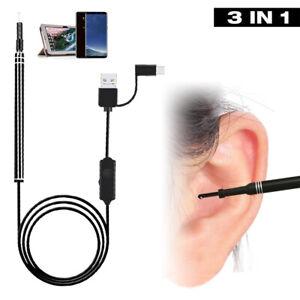 Digital Otoscope Ear Earwax Camera Scope Removal Kit Ear Wax Cleaning Tool UK