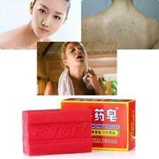 1pc Sulfur Soap Oil-control Blackhead Remover Acne Treatm Whitening D8W6 Cl H0N9