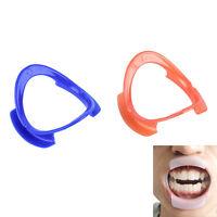 1/5X O-type Dental Teeth Whitening Cheek Retractor Lip Mouth Opener Holder NT