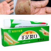 Cracked Heels Balsam für sehr trockene raue Füße Hautcreme mit Effektiver-A T8N9
