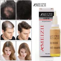 Fast Hair Growth Dense Regrowth Ginger Serum Oil Anti Loss Treatment Essence US