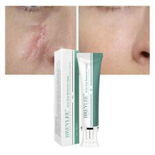 Scar Gel Cream Serum Face Skin Burns Repair Bruises Stretch Treatment