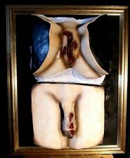 More details for victorian style medical display - syphilis - male & female