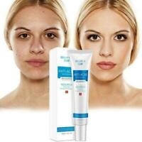 100% Natural Acne Face Cream Magic Skin Acne Scar Removal Shrink Pores M8K8