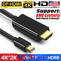 1.8M HDMI Cable MacBook Pro iMac MAC Mini DP Adapter Display Port Thunderbolt