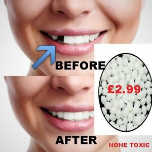 Temporary Tooth Repair Kit Fix Teeth and Filling Gap Material Care Free Postage
