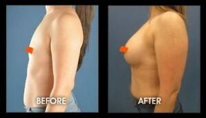 Bomb Breast!! Best Breast Enlargement Enhancement Pills for REAL Cup Size Growth