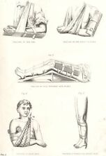 MEDICAL. Fractures; Fore Arm; above Elbow; thigh; Splints; Collar bone 1880