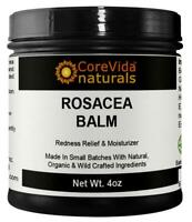 Rosacea Treatment Balm - Rosacea Natural Treatment Balm 4oz