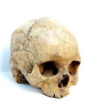vrai CRANE HUMAIN MEDECINE CABINET DE CURIOSITE modèle d'étude médical Chester