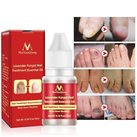 Super Oil Nail Toe Treatment Clear Whitening Fungus Removal Treatment