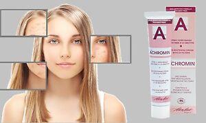 Achromin Haut Aufhellung Creme 45ml - Pigmentiert Gepunktet & Sommersprossen