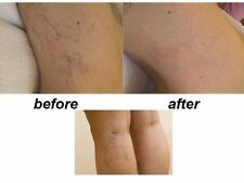 SUPER Varicose Veins Spider Veins Thread Veins REMOVAL TREATMENT gel 2%